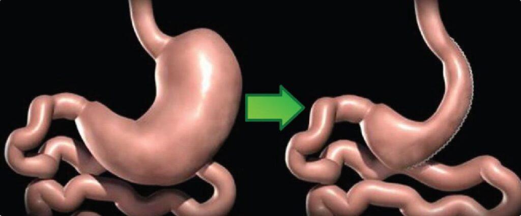 tüp mide ameliyatı nedir
