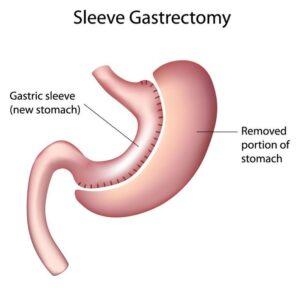 tüp mide ameliyatı ne demek