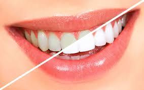 karbonatla diş beyazlatma nasıl yapılır
