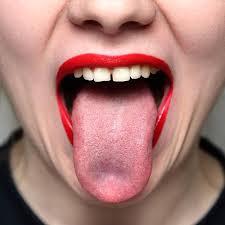 dil yarası nasıl geçer