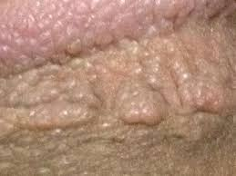 genital siğil kondilom nedir tedavisi