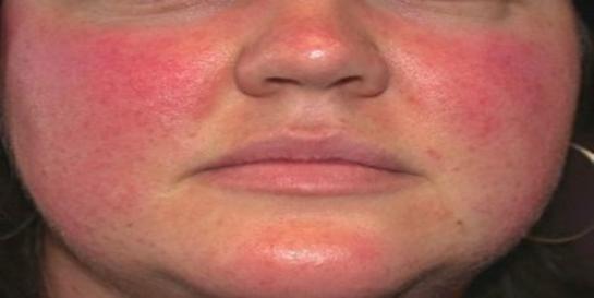 yüz kızarıklığı ve yanak kızarıklığı doğal tedavi yöntemleri