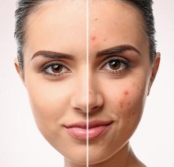 akne vulgaris tedavisi