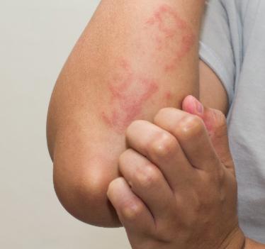 alerjik kaşıntı