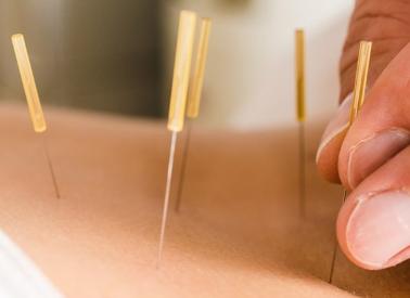 Akupunktur selulit tedavisi