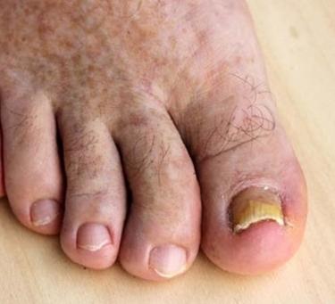 tırnak ayak mantarı